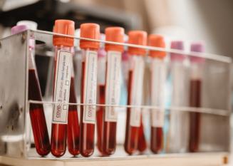 Koronavirustaudin tuottamat vasta-aineet säilyvät jopa vuoden